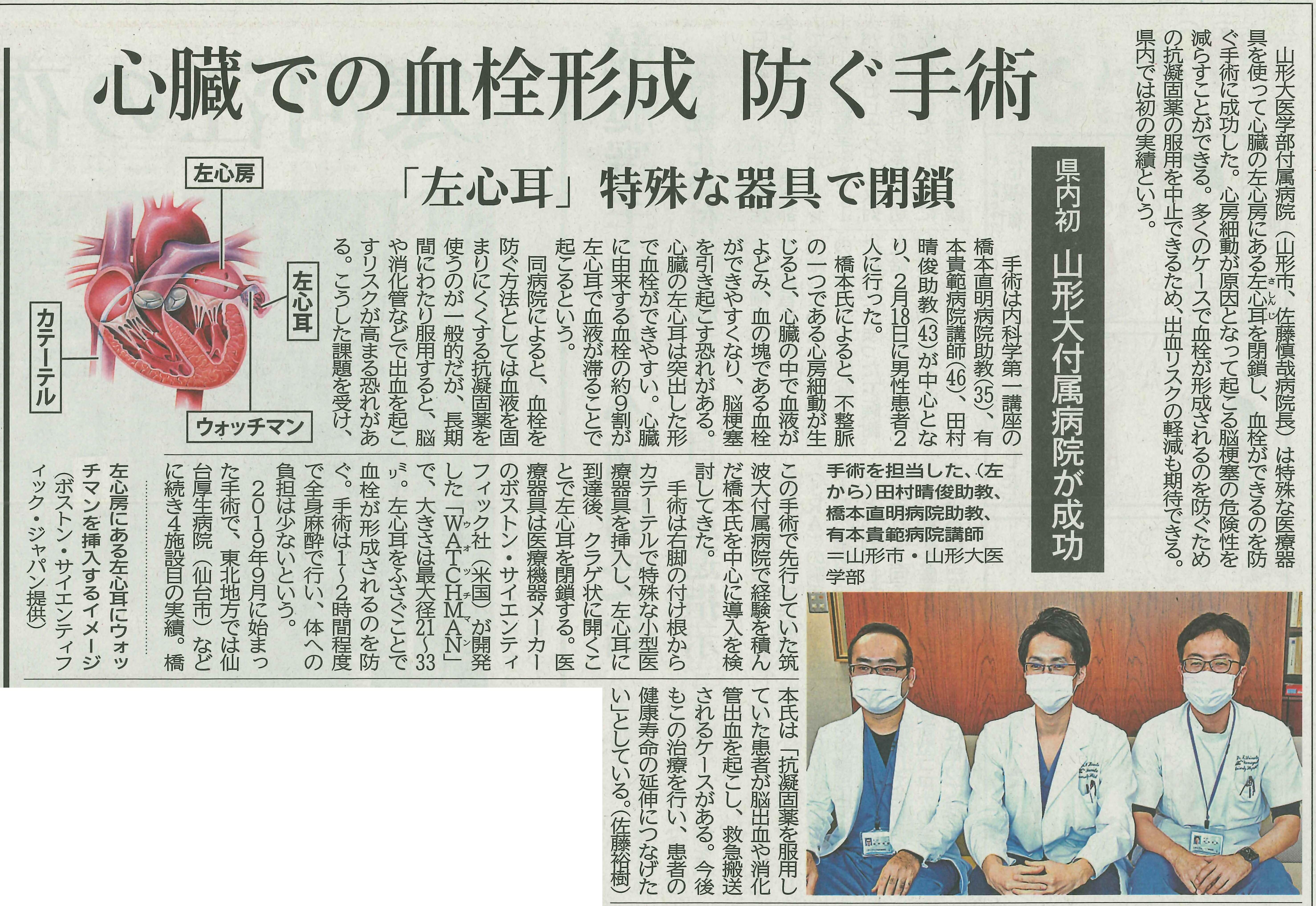 20210331山新(30)県内初 山形大付属病院が成功 心臓での血栓形成 防ぐ手術「左心耳」特殊な器具で閉鎖.jpg